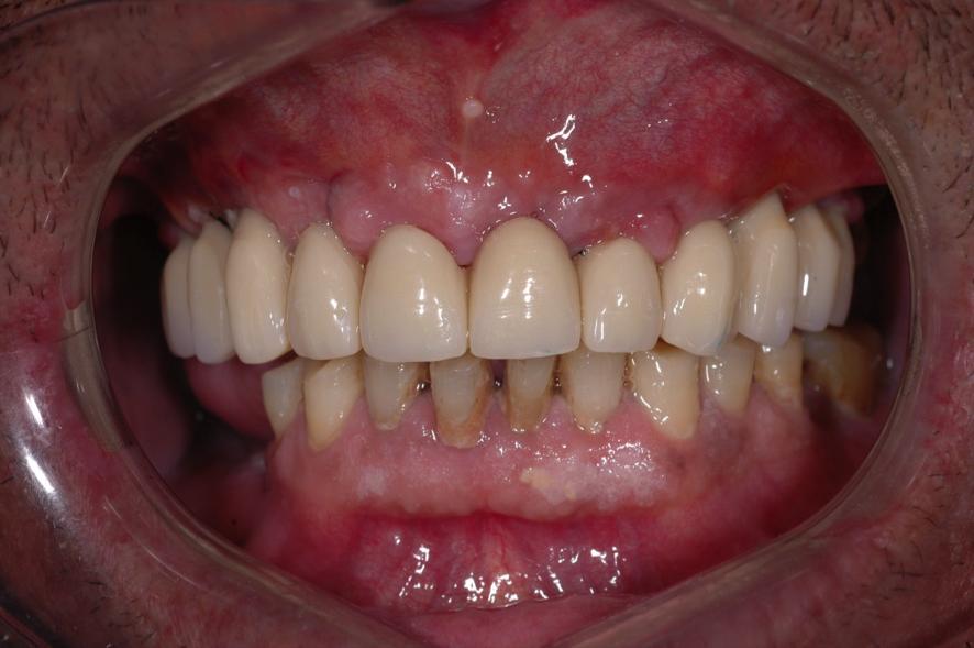 2.caso-clinico-espai-dental